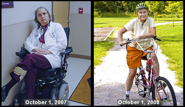 Dr. Terry Wahls before and after