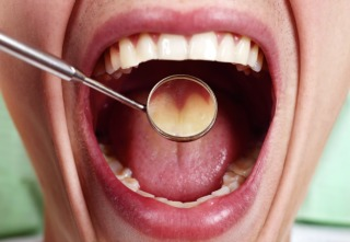 Healthy man teeth and a dentist mouth mirror