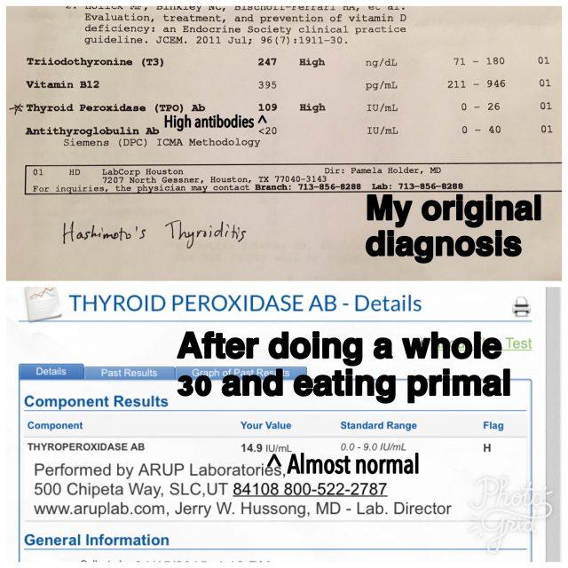 Thyroid_original