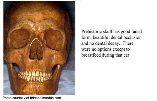 Prehistoric_Skull